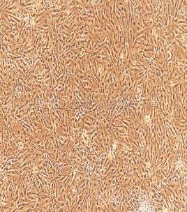 大鼠脉络膜微血管内皮细胞