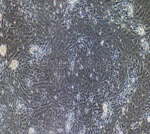 大鼠肝窦内皮细胞
